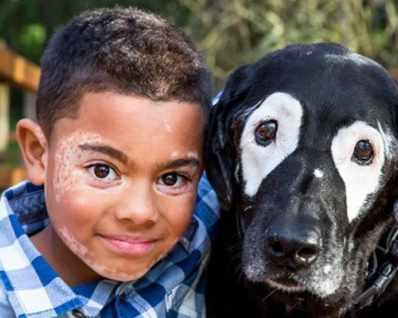 Момче и куче с витилиго стават най-добри приятели