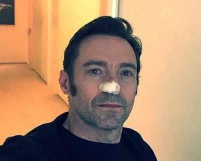 Хю Джакман се лекува от рак на кожата отново