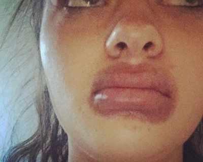 Жена влезе в болница, след като си уголеми устните с ...