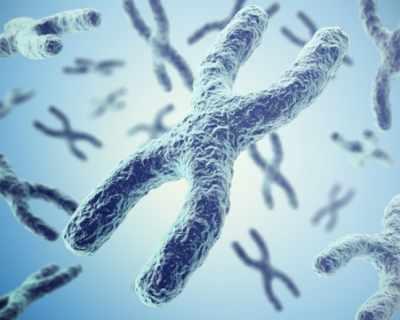 Синдром на Чуплива Х–хромозома – синдром засягащ предимно момченца