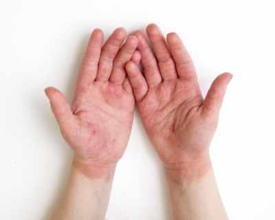 Стартира Националната кампания за диагностика и профилактика на кожните