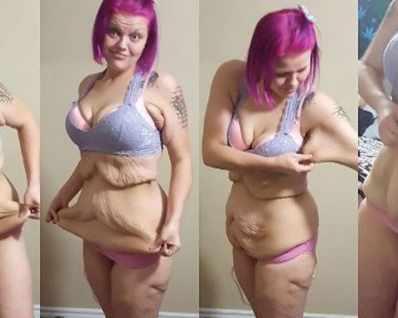"""След като отслабна с 90 кг, жена снима """"престилката"""" ..."""