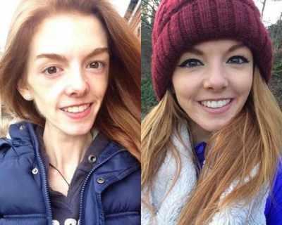 21-годишно момиче се спаси от анорексията с шоколад