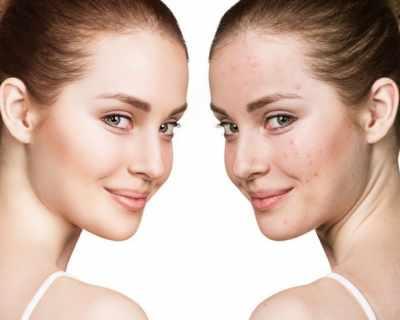 Терапия за кожни несъвършенства в три стъпки