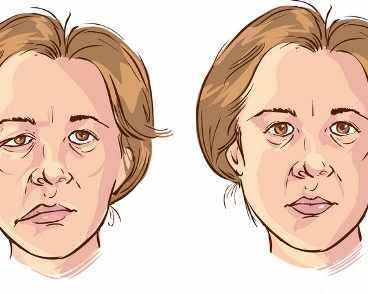 Парализа на Бел (парализа на лицевия нерв)